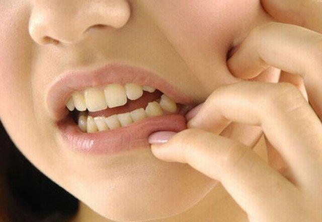 ağız hastalıkları, ağız yaraları, epulis, ağız hastalıkları tedavisi, ağız yaralarının tedavisi, epulis tedavisi
